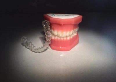 Niewidoczne leczenie ortodontyczne – aparat Invisalign