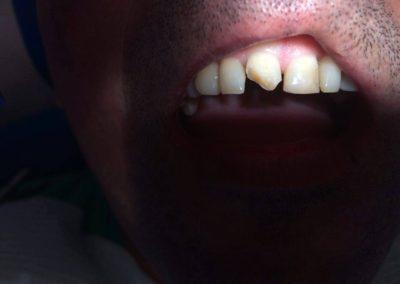 Urazy zębów – jak postępować?
