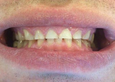 Starcia zębów