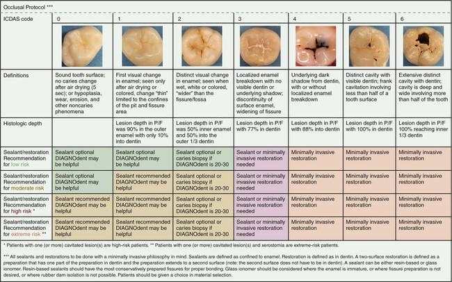 Diagnostyka próchnicy – System ICDAS