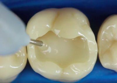 SDR, czyli wypełnienia w zębach bocznych